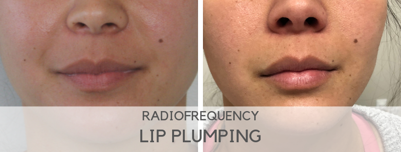 Radiofrequency builds collagen to plump lips
