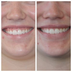 Improving a gummy smile and disappearing upper lip